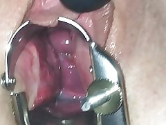 Reflector coupled with cervix law